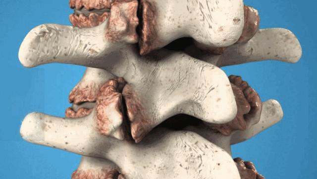 Остеофиты тазобедренного сустава - Твой суставчик