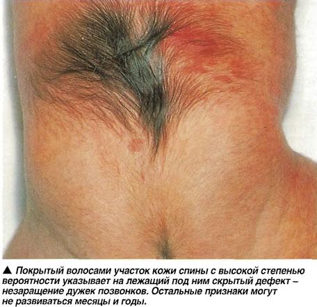 спина