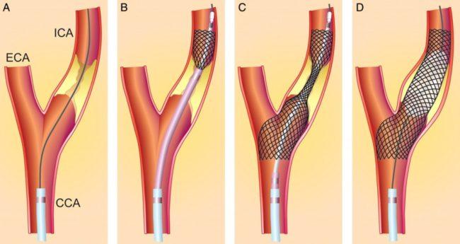 Гипоплазия правой позвоночной артерии лечение спорт