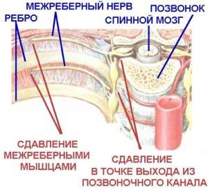 ребра