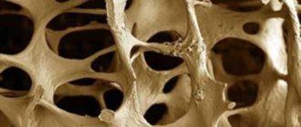 структура кости с раком