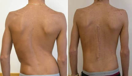 спина после операции